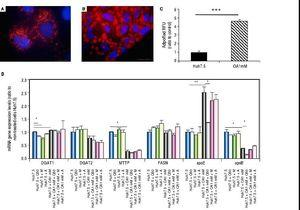 Untreated Huh7.5 (A) and Huh7.5 cells cultured at OA concentrations 1 mM, for 48 hours (B). LDs and nuclei were stained with ORO (red) and Dapi (blue), respectively. Images were acquired with a fluorescence microscope (OLIMPUS BX41) equipped with the standard epifluorescence filter set up for DAPI and FITC under oil with a 100x plan apochromat objective. C. Intracellular triglycerides concentration. AdipoRed™ Assay of Huh7.5 and OA-Huh7.5 cells. The intracellular triglycerides were stained and the concentration of triglycerides was quantified by fluorescence. (Huh7.5 fold=1) (***p < 0.01). Data are presented as the mean values ± SD obtained from three independent experiments. D. (A) mRNA gene expression levels of DGAT-1, DGAT-2, MTTP, FASN, apoE and apoB were determined by RT-PCR. Results were normalized using GAPDH and Huh7.5 non-treated cells were used as reference. *p < 0.05; **p < 0.01 and ***p < 0.001. Data are the mean value ± SD obtained from three independent experiments.