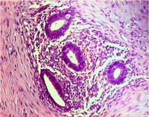 Small endometrial glands embedded on the stroma of one of the endometriotic foci (HE, x100).