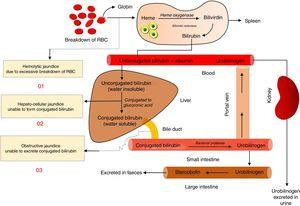 Pathophysiology of jaundice.