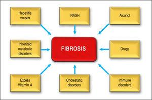 Shows several causes of hepatic fibrosis: viral infection is most common (hepatitis B and C). Nonalcoholic steatohepatitis (NASH). Also liver fibrosis is associated with the consumption of alcohol, or autoimmune hepatitis and chronic cholangiophaties.