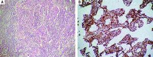 A. The hilar lymph node showed metastatic carcinoma with sheets of malignant neoplastic cells with a lymphoid background (hematoxylin-eosin, 100x). B. These neoplastic cells were confirmed to be of epithelial origin (CAM 5.2, 100x).