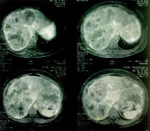 Initial CT scan. CT scan evidencing 2 bulking liver tumors in right liver and left lateral section.
