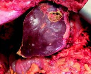 Stage 2 surgery. Final aspect of liver remnant after stage 2 surgery.