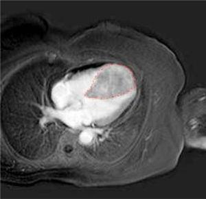 Cardiac CT scan imaging. The dotted line indicates a large lo-bate formation at the interventricular septum and cardiac apex, enhanced by the CT contrast medium.
