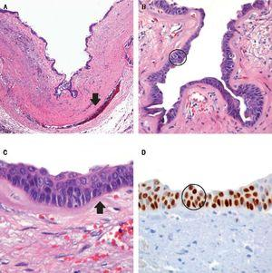 The photomicrograph shows the fibrous cystic wall (A) wich inner surface is covered by columnar epithelium (B) with extensive squamous metaplasia (C) The metaplastic cells expressedp63 (D) and high molecular weight cytoqueratin.