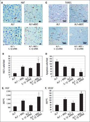 Cell transplantation promoted proliferation and suppressed apoptosis of hepatocytes via growth factors. A, C. Immunohistochemical staining of Ki67 and TUNEL assay on 14th day after cell perfusion. B, D. Graph of the average percentage of Ki67-positive cells and TUNEL-positive cells. E, F. Levels of HGFand VEGF on days 14 after cell perfusion. * P < 0.05 vs. ALF + MSC group. ** P < 0.05 vs. ALF + IL-1βsiRNA group, data are shown as mean±SD. TUNEL: 2'-deoxyuridine 5-triphosphate nick-end labeling. HGF: hepatocyte-generating factors. VEGF: vascular endothelial growth factor.