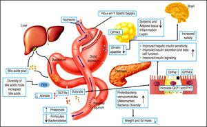 Effects of Roux-en-Y Gastric Bypass surgery on the gut microbiota and its metabolic out comes. RYGB induces various environmental, systemic, and anatomical changes that might directly or indirectly affect the composition of the gut microbiota.