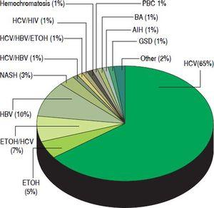 Distribution of etiologies of liver disease in 145 patients who underwent liver transplant for hepatocellular carcinoma at the Johns Hopkins University Comprehensive Liver Transplant Center, expressed in percentages. HCV: hepatitis C virus. ETOH: Alcoholic liver disease. HBV: hepatitis B virus. NASH: non-alcoholic steatohepatitis. HIV: human immunodeficiency virus. PBC: primary biliary cholangitis. BA: biliary atresia. AIH: autoimmune hepatitis. GSD: glycogen storage disease.
