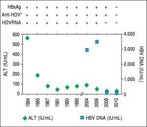 After acute hepatitis due to HDV superinfection, ALT levels de creased although intermittent elevations were documented during follow-up. In 2004, when the patient started monitoring, HBV DNA was quantified and levels remained below 20,000 UI/mL. In 2010, without any specific treatment, HDV RNA became undetectable, and spontaneous HBsAg sero-clearance was documented. * IgG anti-HDV.