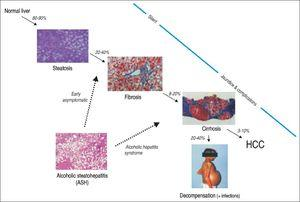 The spectrum of alcoholic liver disease (adapted from reference 78).