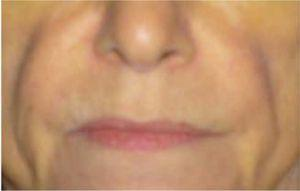 Marked facial lipodystrophy in patient with alcohol-related liver disease due to protein-energy malnutrition.