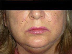 """Fine """"paper-money"""" skin appearance of cheeks and nasolabial folds, hypertrichosis and bilateral parotid enlargement in patient with alcohol-related liver disease."""