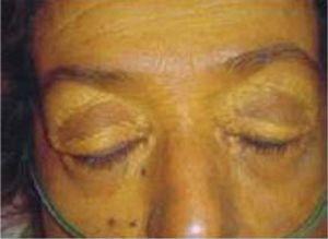 Bilateral xanthelasmata of upper eyelids (Macias-Rodri-guez RU, Torre-Delgadillo A. Xanthelasmas and xanthomatas striatum palmare in primary biliary cirrhosis. Ann Hepatol. 2006 Jan-Mar; 5: 49, with permission).