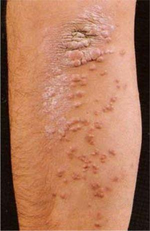 Papular eruptive xanthomas-multiple, discrete, papules becoming confluent at the level of elbow (from Color Atlas & Synopsis of Clinical Dermatology, 4the, Fitzpatrick et al., with permission).