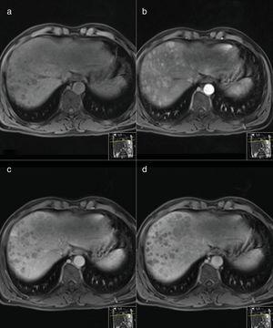 MR Images performed before (a) and after intravenous injection of gadoxetic acid of a histology proven hepatocarcinoma (HCC). Axial arterial phase T1-weighted MR image (b) shows multiple nodular areas of early enhancement involving the right lobe. Axial portal venous (c) and delayed (d) phase T1-weighted MR images show washout appearance of the nodules.