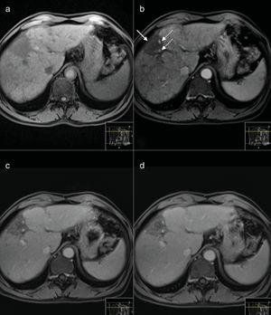 MR Images performed 9 years after treatment before (a) and after intravenous injection of gadoxetic acid. The nodular lesions are no longer seen in any of the sequences. There is a subcapsular hipointense area in dynamic T1-weighted MR images, causing capsular retraction (arrow in b) suggestive of a fibrotic area. There are small vessels (dashed arrows) but no suspicious nodular enhancing areas are seen.