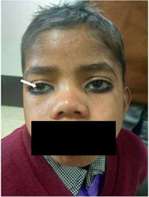 Corneal clouding in a boy with mucopolysaccharidoses type 1 (arrow).