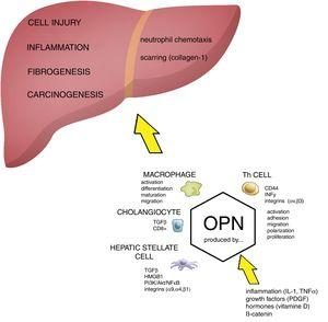 The role of OPN in the pathogenesis of liver damage. Osteopontin (OPN) is involved in regulation of numerous pathological conditions including cell injury, inflammation, fibrogenesis and carcinogenesis. OPN interacts with many signaling pathways including integrins, growth factors and cytokines. OPN acts as a chemoattractant for neutrophils and macrophages. During cell injury and inflammation OPN activates hepatic stellate cells and it has been directly implicated in fibrogenesis (scarring). Akt, protein kinase B; HMGB1, high mobility group box 1 protein; HSC, hepatic stellate cells; IL-1, interleukin 1; OPN, osteopontin; PDGF, platelet-derived growth factor; PI3K, phosphatidylinositol 3-kinase; NFκB, nuclear factor kappa-B; PKC, protein kinase C; TGFβ, transforming growth factor beta; TNFα, tumor necrosis factor alpha.