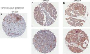 CD98 upregulation in liver tissue with hepatocellular carcinoma. CD98 expression assessed by immunohistochemistry staining from tissue samples (brown). (A) Male age 65, (B) Female age 35 (top), Female age 55 (bottom), (C) Male age 58 (top), Male age 41 (bottom).