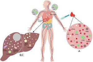 (A) Liquid biopsy of hepatocellular carcinoma (HCC): Spontaneous circulation of CTCs and CTM in peripheral blood reflects tumor progression and tumor spread in patients with HCC [20]. (B) Cell-free nucleic acids (cfNA): cfNA (DNA and RNA) are known to come from apoptotic and necrotic cells or to be released from living eukaryotic cells, thereby providing a valuable source of material which can instruct about natural or biological and pathological processes within its cellular source [170]. (C) Extracellular vesicles (EVs): EVs are small membrane vesicles released by cells in the extracellular environment as part of normal physiology or during pathological processes, which function is the communication between cells, their cargo (mRNAs, miRNAs, proteins and lipids) may reflect the cell of origin as well as the specific stress that induces their formation and release [149,150]. Red blood cell (RBC), white blood cell (WBC), circulating tumor cells (CTCs), circulating tumor microemboli (CTM), and cell-free DNA (cfDNA).