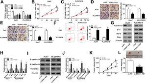 DDX11-AS1 silencing suppressed HCC cell progression and HCC tumor growth. (A) The transfection efficiency of si-DDX11-AS1#1/#2/#3 was determined by qRT-PCR assay. (BC) CCK-8 assay was used to measure the proliferation of Huh7 and PLC/PRF/5 cells. (DE) Transwell assay was performed to detect the migration and invasion of Huh7 and PLC/PRF/5 cells. (F) The apoptosis rate of Huh7 and PLC/PRF/5 cells was determined by apoptosis determination assay. (GJ) The protein levels of Cyclin D1, p21, Bcl-2, Bax, E-cadherin, N-cadherin and Vimentin were determined using WB analysis. Tumor volume (K) and tumor weight (L) of HCC mice models were detected in the sh-DDX11-AS1 group and sh-NC group. *P<0.05.