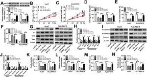 Effects of miR-195-5p mimic and MACC1 overexpression on HCC progression. Huh7 and PLC/PRF/5 cells were transfected with miR-NC, miR-195-5p mimic, miR-195-5p+pcDNA, or miR-195-5p+MACC1, respectively. (A) WB analysis was used to measure the protein level of MACC1 in Huh7 and PLC/PRF/5 cells to assess the transfection efficiency of miR-195-5p mimic and MACC1 overexpression vector. (B–C) CCK-8 assay was performed to assess the proliferation of Huh7 and PLC/PRF/5 cells. (D–E) Transwell assay was employed to evaluate the migration and invasion of Huh7 and PLC/PRF/5 cells. (F) Apoptosis determination assay was used to measure the apoptosis of Huh7 and PLC/PRF/5 cells. (G–J) WB analysis was performed to detect the protein levels of Cyclin D1, p21, Bcl-2, Bax, E-cadherin, N-cadherin and Vimentin. The lactate production (K), glucose consumption (L), ATP level (M) and glucose uptake (N) of Huh7 and PLC/PRF/5 cells were tested by Lactate Assay Kit, Glucose Assay Kit, ATP Assay Kit and Glucose Uptake Assay Kit, respectively. *P<0.05.