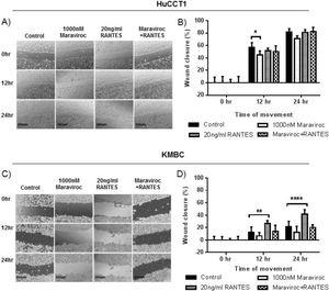 Migration of HuCCT1 and KMBC cells after exposure to the <span class=