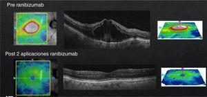 Diffuse DME with central involvement, pre- and post-treatment with just 2 doses of ranibizumab.