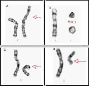 Examples of chromosome X structural alterations. (A) Isochromosome of the long arm of X. (B) Chromosomal mark and a ring. (C) Deletion of the short arm of the X chromosome. (D) Deletion of the long arm of X chromosome.