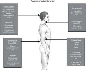 Possible routes of administration of stem cells for stroke.
