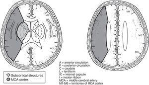 Outline of the division of the territory of the middle cerebral artery into 10 regions for the ASPECTS scale (less of 7, means more than 1/3 of the artery territory involved).