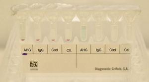 Results direct anti-human globulin test (IgG and C3b) presenting negative results.