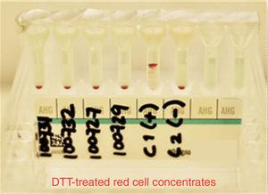 Antibody screening panel erythrocytes DTT threated, showing negative results in 4 blood donors. C1 (control positive) C2 (control negative).