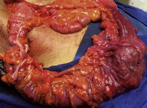 Examen macroscópico de la pieza quirúrgica de 45 cm, de los cuales 32cm corresponden al colon y 13cm al íleon.