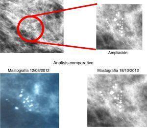 Análisis comparativo de la mastografía del 18 de octubre de 2012.