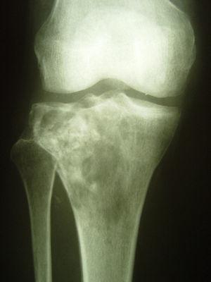 Osteosarcoma de la tibia proximal. Observar zonas de apariencia radiológica blástica en coexistencia con zonas líticas.