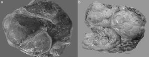 Fotos comparativas de una neoplasia mucinosa primaria de ovario (a) y un adenocarcinoma mucinoso metastásico a ovario (b). A simple vista no es posible distinguir entre una neoplasia primaria y una metastásica, ya que ambas son de gran tamaño, multiloculares y con presencia de abundante mucina.