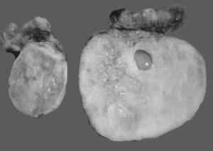 Foto macroscópica de un tumor de Krukenberg. La neoplasia afecta ambos ovarios, es blanca, de aspecto fibroso con pequeñas áreas quísticas. Si la neoplasia fuera unilateral, el principal diagnóstico diferencial sería un fibroma ovárico.