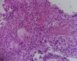 Rodeando al hueso residual (flecha) se observan osteoblastos reactivos, por la presencia de estructuras glandulares diversas, algunas con células con material mucoide en su interior (×40).