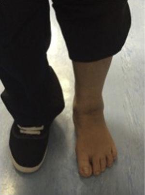 Vista anterior-posterior de la paciente, 12 meses después del inicio de los síntomas tolerando la deambulación.