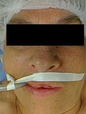 Imagen facial prequirúrgica (antes de la maxilectomía).