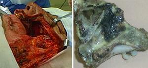 Transquirúrgico y pieza quirúrgica. A) Lecho quirúrgico posterior a la resección. B) Pieza quirúrgica con tumoración hiperpigmentada en la pared nasal externa.