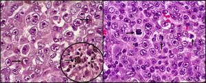 Histopatología. A) Proliferación neoplásica, irregularidad de la membrana nuclear con cromatina desplazada a la periferia, nucléolo eosinófilo prominente. Se observa en el citoplasma pigmento melánico (flechas). B) Mitosis atípicas abundantes entremezcladas con células neoplásicas pleomórficas (flechas).