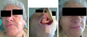Imágenes clínicas: facial e intraoral.