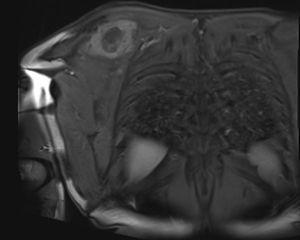 Secuencia coronal de resonancia magnética. Se observa masa de tipo infiltrativo con compromiso medial de escápula derecha y de músculos subescapular, deltoides y supraespinoso.