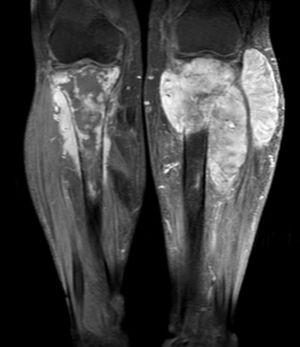 (T1) Tumoración sólida homogénea hipercaptadora de 125×50×43mm, con compromiso óseo y de partes blandas en pierna derecha. Lesión similar en la pierna izquierda con menor compromiso óseo, pero mayor compromiso de partes blandas de 160×116×92mm.
