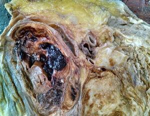 Fotografia macroscópica donde se identifica distorción anatómica con destrucción osea y tejidos blandos.
