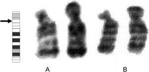 Cariotipo parcial (GTG) del paciente (A) y de la madre (B), que muestra el par de cromosomas 18. Se indica el punto de quiebra 18p11.21.