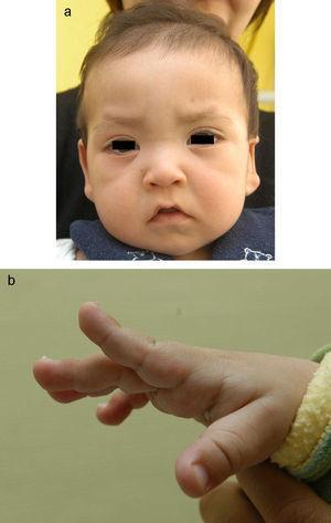 a: rasgos faciales de un varón de 11 meses con síndrome de Kabuki. b: persistencia del almohadillado fetal en el pulpejo de dedos de un varón de 11 meses con síndrome de Kabuki.