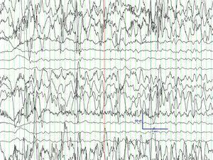 EEG con patrón de hemihipsarritmia.
